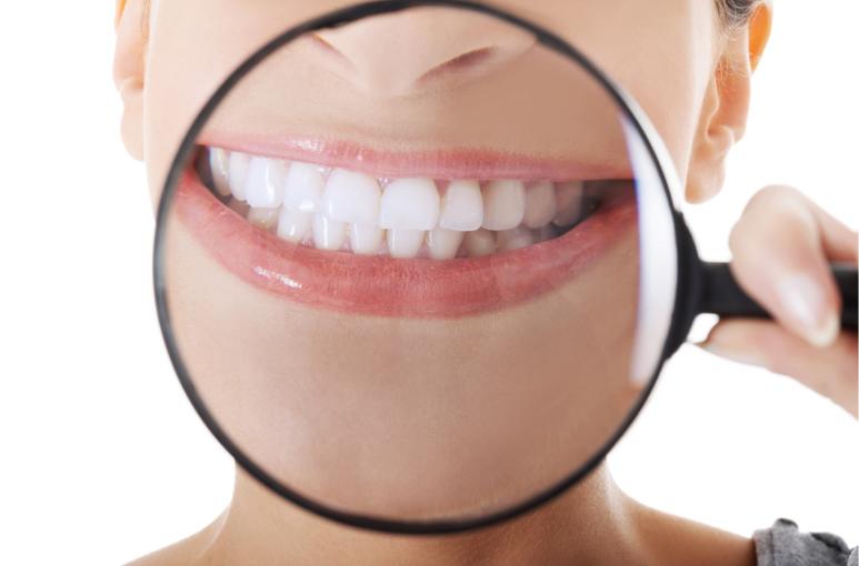 Bij TRIDENZO kunt u terecht voor implantaten